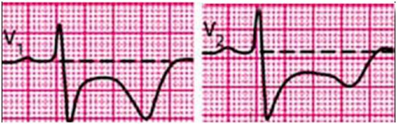 По электрокардиограммеможно выявить наличие инфаркта миокарда