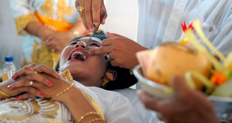 Подпиливание зубов в Бали