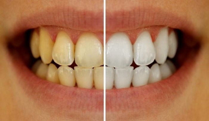 Здоровые и больные зубы