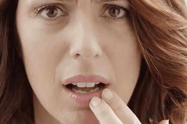 Чешутся губы