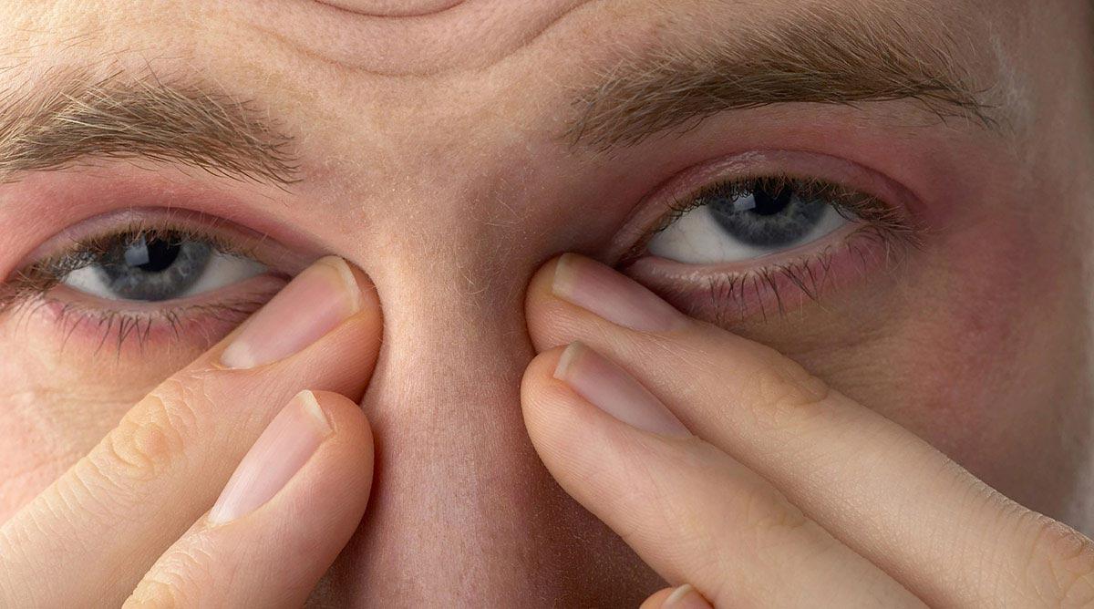 Зуд обоих глаз